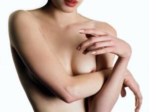 Un seno e la chirurgia plastica
